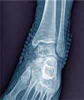 Healthy ankle joint. Coloured frontal X-ray of the left ankle of a 21 year old patient. Strapping around the ankle is visible on this X-ray. Stock Photo - Premium Royalty-Freenull, Code: 679-06781287