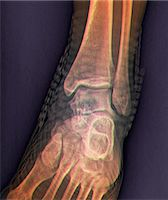 Healthy ankle joint. Coloured frontal X-ray of the left ankle of a 21 year old patient. Strapping around the ankle is visible on this X-ray. Stock Photo - Premium Royalty-Freenull, Code: 679-06781288
