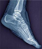 Healthy ankle joint. Coloured profile X-ray of the left ankle of a 21 year old patient. Strapping around the ankle is visible on this X-ray. Stock Photo - Premium Royalty-Freenull, Code: 679-06781289