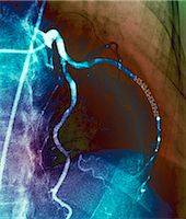 Coronary stent. Coloured angiogram (blood vessel X-ray) of the coronary arteries of a 52 year old patient. The artery at right has had a stent placed in it to treat a blockage. Stock Photo - Premium Royalty-Freenull, Code: 679-06781302