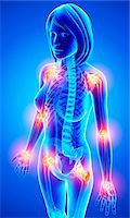 spinal column - Joint pain, computer artwork. Stock Photo - Premium Royalty-Freenull, Code: 679-07153143