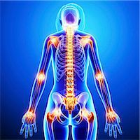 spinal column - Joint pain, computer artwork. Stock Photo - Premium Royalty-Freenull, Code: 679-07154298