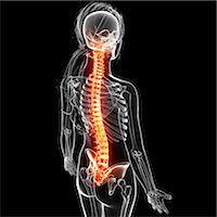 spinal column - Back pain, computer artwork. Stock Photo - Premium Royalty-Freenull, Code: 679-07163920