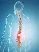 spinal column - Back pain, computer artwork. Stock Photo - Premium Royalty-Freenull, Code: 679-07603613