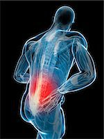 spinal column - Back pain, computer artwork. Stock Photo - Premium Royalty-Freenull, Code: 679-07603617