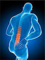 spinal column - Back pain, computer artwork. Stock Photo - Premium Royalty-Freenull, Code: 679-07603619