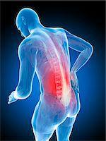 spinal column - Back pain, computer artwork. Stock Photo - Premium Royalty-Freenull, Code: 679-07603628