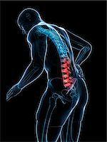 spinal column - Back pain, computer artwork. Stock Photo - Premium Royalty-Freenull, Code: 679-07603640