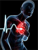Heart attack, computer artwork. Stock Photo - Premium Royalty-Freenull, Code: 679-07604039