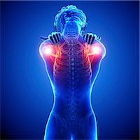 rib - Shoulder pain, computer artwork. Stock Photo - Premium Royalty-Freenull, Code: 679-07604891