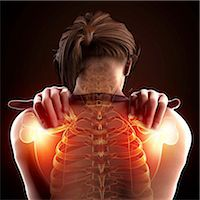 spinal column - Shoulder pain, computer artwork. Stock Photo - Premium Royalty-Freenull, Code: 679-07604900
