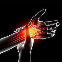 Wrist pain, computer artwork. Stock Photo - Premium Royalty-Freenull, Code: 679-07604921
