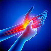 Wrist pain, computer artwork. Stock Photo - Premium Royalty-Freenull, Code: 679-07604922