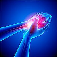 Wrist pain, computer artwork. Stock Photo - Premium Royalty-Freenull, Code: 679-07604926