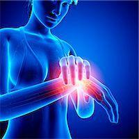 Wrist pain, computer artwork. Stock Photo - Premium Royalty-Freenull, Code: 679-07604928