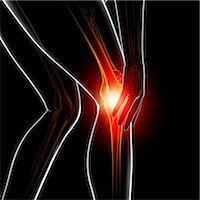 Knee pain, computer artwork. Stock Photo - Premium Royalty-Freenull, Code: 679-07604948