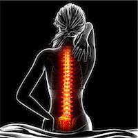 spinal column - Back pain, computer artwork. Stock Photo - Premium Royalty-Freenull, Code: 679-07604951