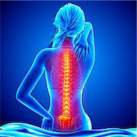 spinal column - Back pain, computer artwork. Stock Photo - Premium Royalty-Freenull, Code: 679-07604952