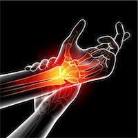Wrist pain, computer artwork. Stock Photo - Premium Royalty-Freenull, Code: 679-07604957