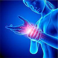 Wrist pain, computer artwork. Stock Photo - Premium Royalty-Freenull, Code: 679-07604959