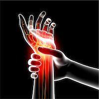 Wrist pain, computer artwork. Stock Photo - Premium Royalty-Freenull, Code: 679-07604966