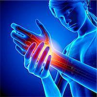 Wrist pain, computer artwork. Stock Photo - Premium Royalty-Freenull, Code: 679-07604967