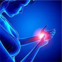 Wrist pain, computer artwork. Stock Photo - Premium Royalty-Freenull, Code: 679-07604968