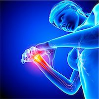 Wrist pain, computer artwork. Stock Photo - Premium Royalty-Freenull, Code: 679-07604970