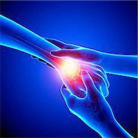 Wrist pain, computer artwork. Stock Photo - Premium Royalty-Freenull, Code: 679-07604987