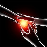 Wrist pain, computer artwork. Stock Photo - Premium Royalty-Freenull, Code: 679-07604988