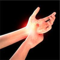 Wrist pain, computer artwork. Stock Photo - Premium Royalty-Freenull, Code: 679-07604990