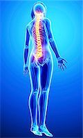 spinal column - Back pain, computer artwork. Stock Photo - Premium Royalty-Freenull, Code: 679-07605091