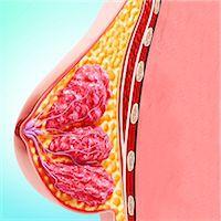 Breast anatomy, computer artwork. Stock Photo - Premium Royalty-Freenull, Code: 679-07605850
