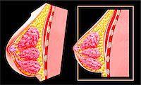 Breast anatomy, computer artwork. Stock Photo - Premium Royalty-Freenull, Code: 679-07606170
