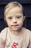 Thoughtful girl with down syndrome looking away Stock Photo - Premium Royalty-Freenull, Code: 698-07635739