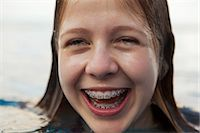 preteen open mouth - Smiling girl revealing braces Stock Photo - Premium Royalty-Freenull, Code: 6122-07707463