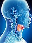 Human larynx tumor, computer artwork.