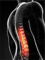 spinal column - Human back pain, computer artwork. Stock Photo - Premium Royalty-Freenull, Code: 679-07765541