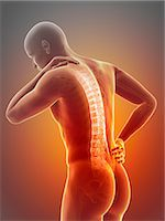 spinal column - Human back pain, computer illustration. Stock Photo - Premium Royalty-Freenull, Code: 679-08009001