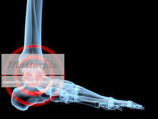 3d rendered x-ray illustration of a painful human foot Stock Photo - Royalty-Free, Artist: Eraxion                       , Code: 400-04482962