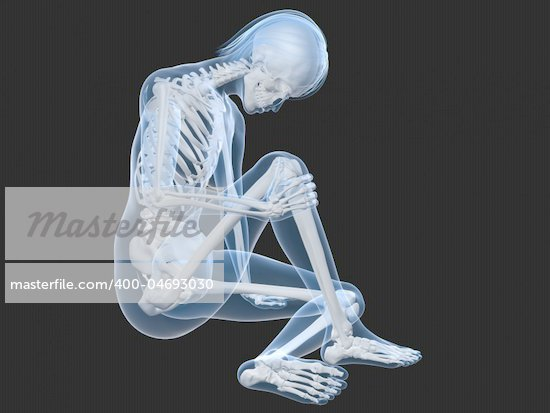 3d rendered illustration of a sitting female skeleton with painful knee Stock Photo - Royalty-Free, Artist: Eraxion                       , Code: 400-04693030