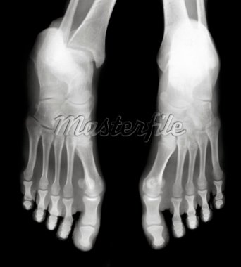 Foot fingers exposed on x-ray black and white film Stock Photo - Royalty-Free, Artist: Suljo                         , Code: 400-04823790