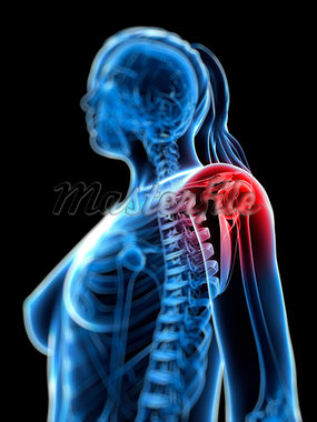Shoulder pain, conceptual computer artwork. Stock Photo - Premium Royalty-Freenull, Code: 679-05995323