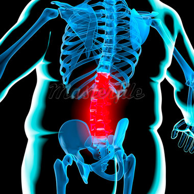 Back pain in obesity, conceptual computer artwork. Stock Photo - Premium Royalty-Freenull, Code: 679-05996437