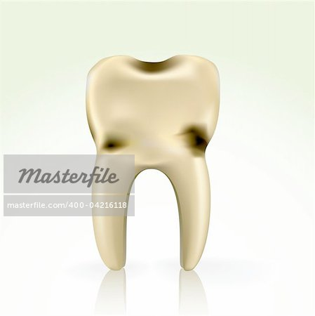 unhealthy, yellow cavity tooth. better floss and brush regularly Stock Photo - Budget Royalty-Free, Image code: 400-04216118