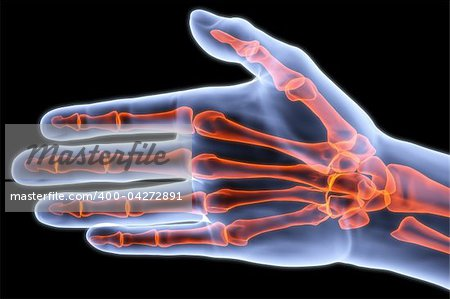 human palm under X-rays. bones are highlighted in red. Stock Photo - Budget Royalty-Free, Image code: 400-04272891