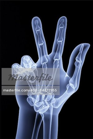 the human hand shows the number of fingers under the X-rays Stock Photo - Budget Royalty-Free, Image code: 400-04272955