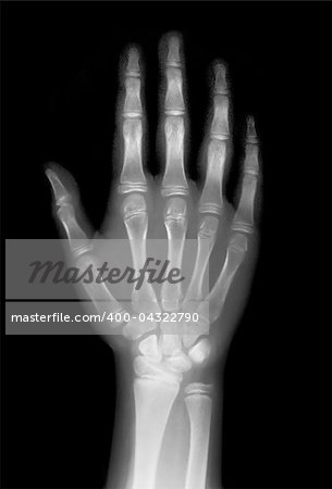 hand on x-ray negative film Stock Photo - Budget Royalty-Free, Image code: 400-04322790