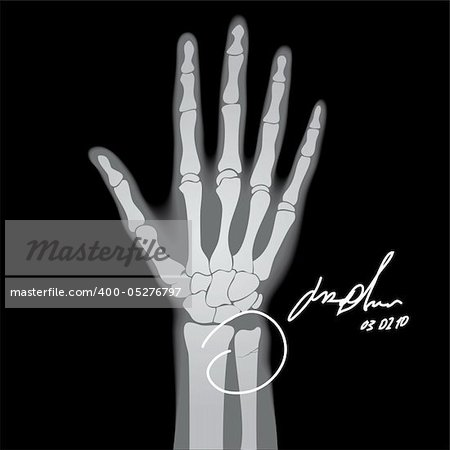 Vector illustration of brooken hand. X-ray. Stock Photo - Budget Royalty-Free, Image code: 400-05276797