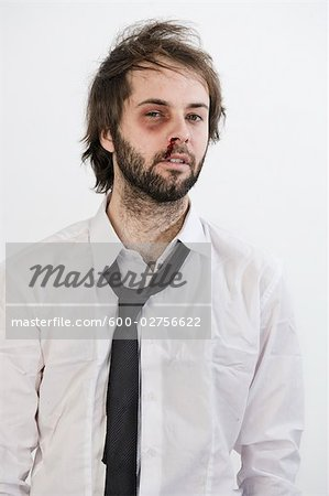 Portrait of Man with Black Eye Stock Photo - Premium Royalty-Free, Image code: 600-02756622